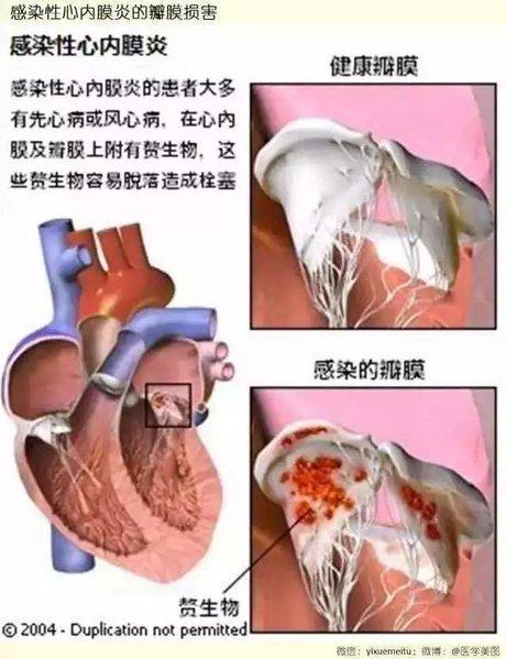 感染 性 心 内 膜 炎